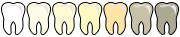Sbiancante denti a led, kit per lo sbiancamento dei denti con gel e USB